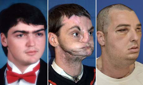 Richard Norris as he was in 1993 (left), in a pre-transplant, photo, and as he looked on Monday. Photograph: Reuters