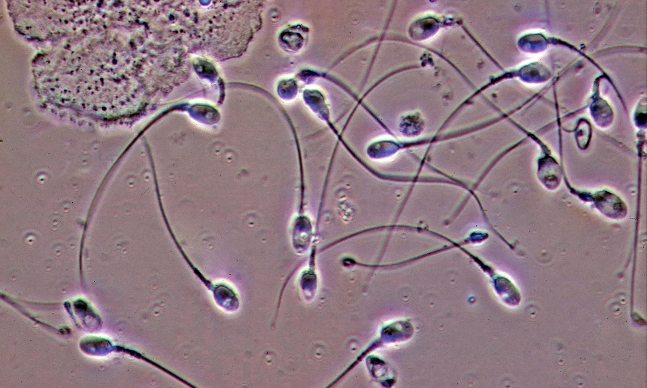 Сперма фото под микроскопом 2 фотография