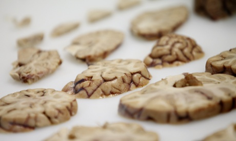 Gene therapy rescues dying cells in the brains of Alzheimer's patients
